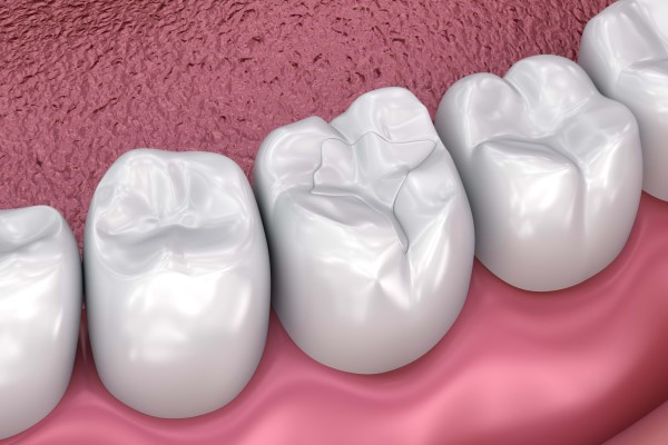 Dental Restoration Options For Decayed Teeth